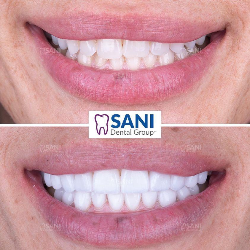 dental veneers in mexico