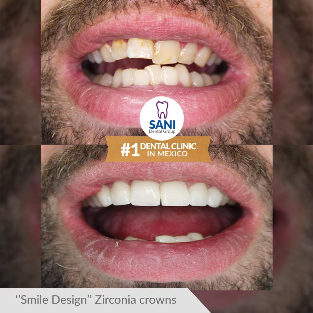 smile design with crowns