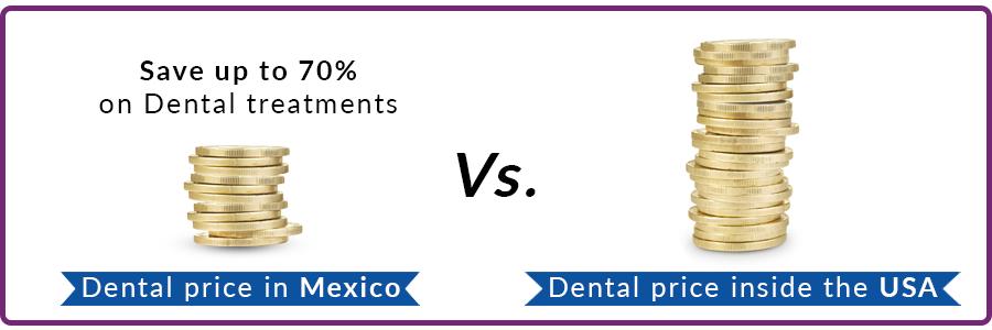 dental-veneers-in-mexico