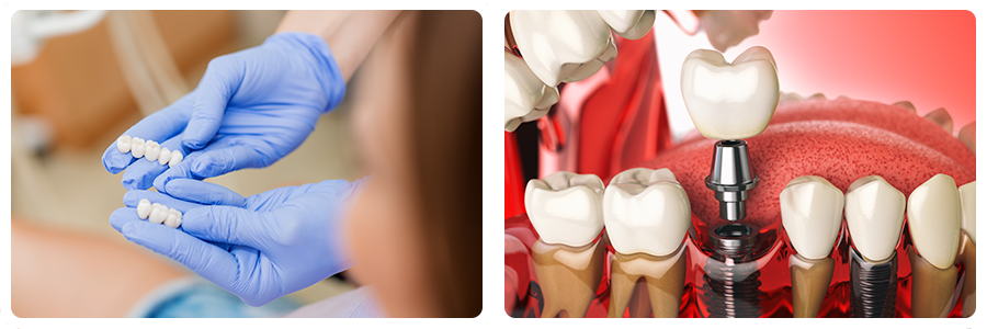 dental crowns and implants