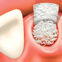 Bone Graft for dental implants