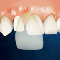 Porcelain Veneers in Mexico